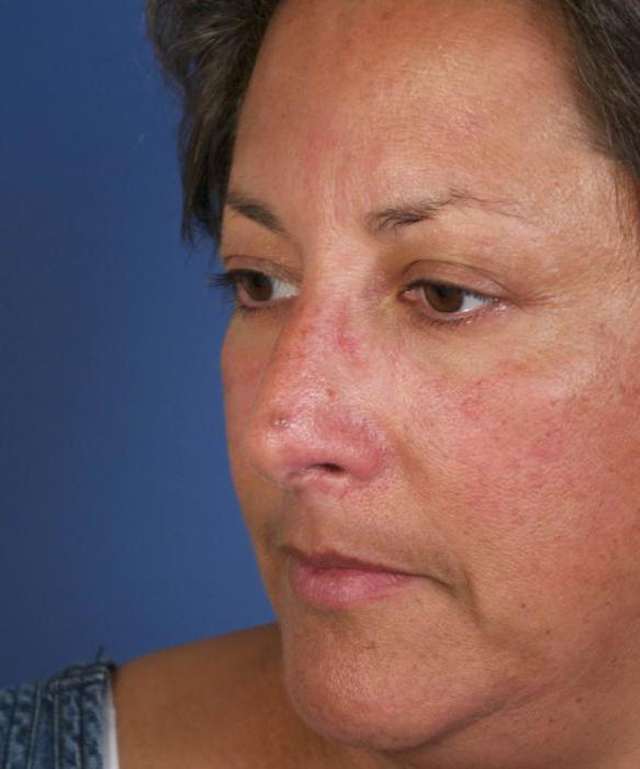 Папилломы в горле после операции