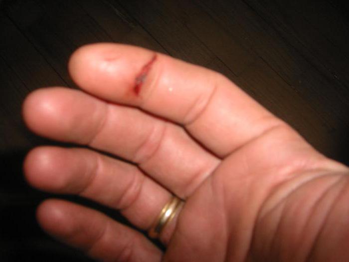 Порезать палец - примета и суеверия