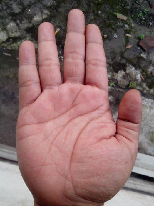 фото лопатообразной руки болезней