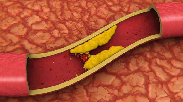 настои от холестерина