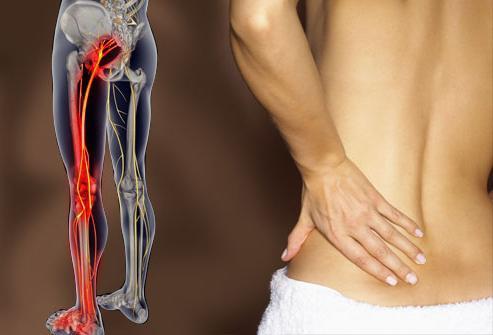 боли в спине отдающие в ногу