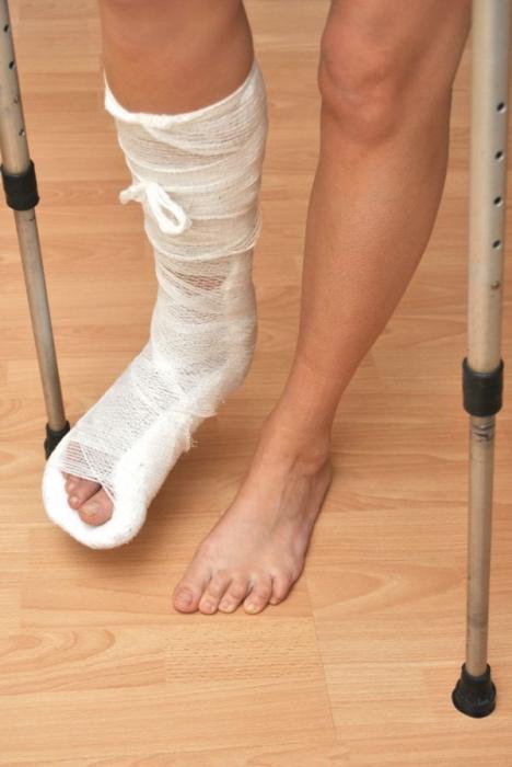 Как сделать себе перелом ноги