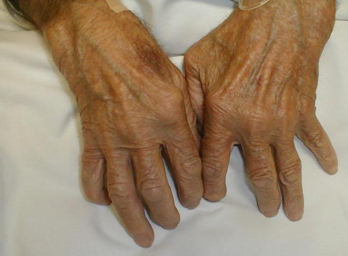 Институт ревматологии рамн