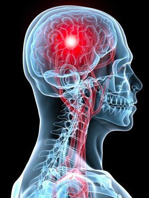 тремор головы при шейном остеохондрозе