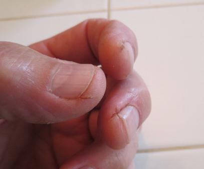 трескается кожа на пальцах причина