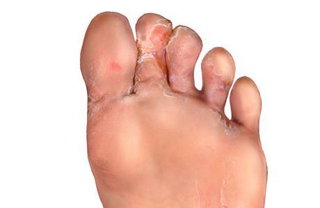 трескается кожа на пальцах ног
