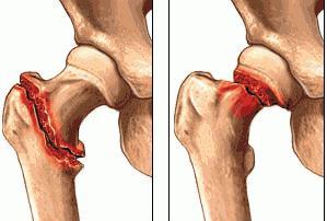 Болезнь кенига коленного сустава лечение народными средствами