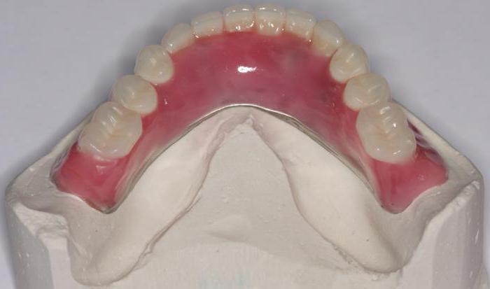 нейлоновый протез при полном отсутствии зубов