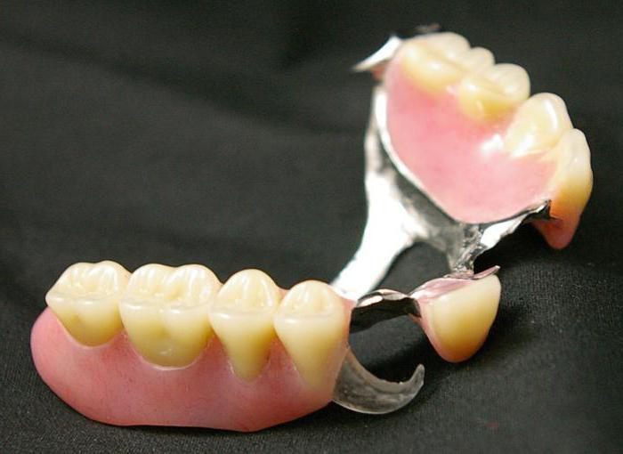 нейлоновый протез при полном отсутствии зубов фото
