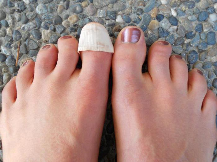 отслоение ногтя на большом пальце ноги причины