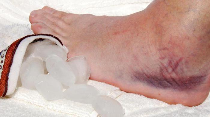 Отек голеностопного сустава: причины и особенности лечения