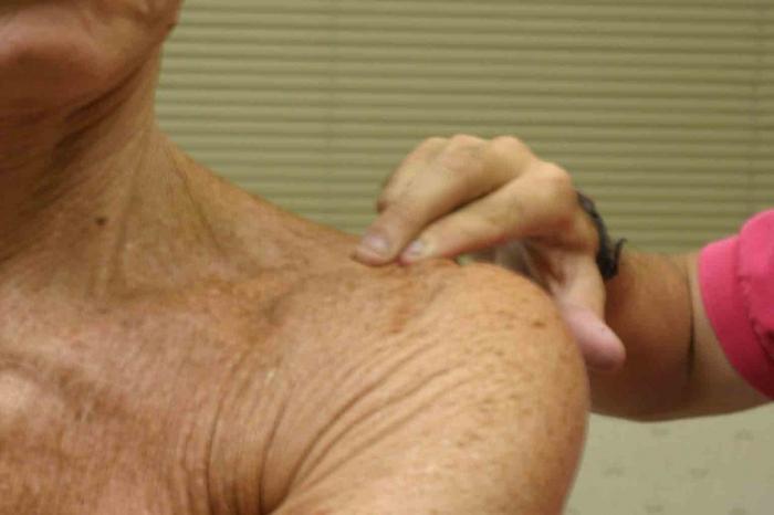 Лечение артроза плечевого сустава народными средствами Суставы