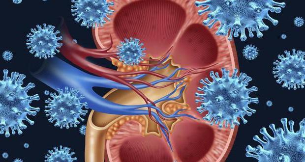 Лечение пиелонефрита в домашних условиях народными средствами. Симптомы пиелонефрита