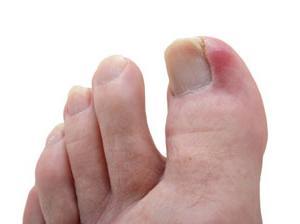Врастают ногти на ногах что делать в