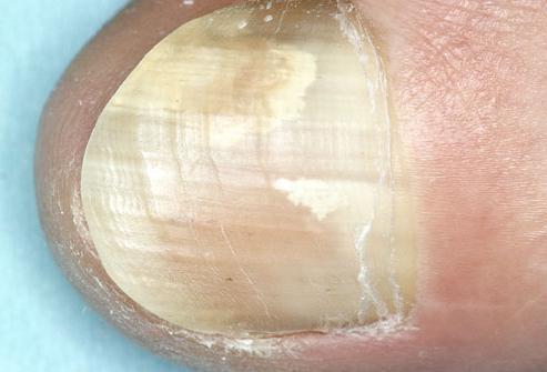 Лечение миомы матки эма отзывы