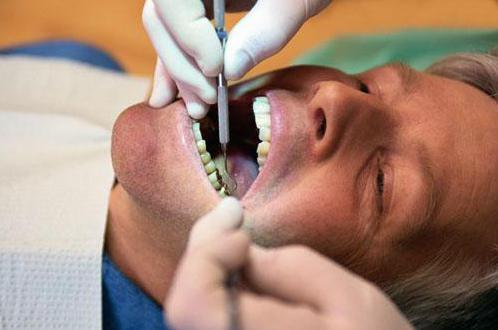 мышьяк убивает нерв в зубе