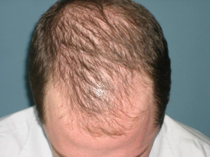 На протяжении многих веков мужчине приличествовали длинные волосы, но нынче это удел относительно немногочисленных