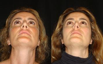 операция на перегородку носа
