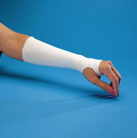 Пластиковый гипс удобен или нет? Пластиковый гипс при переломах рук и ног