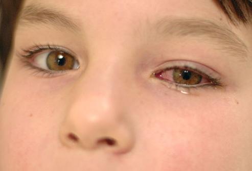 Можно лечит зубы ребенку под общим наркозом