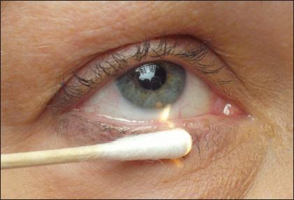 Частые носовые кровотечения у подростков лечение