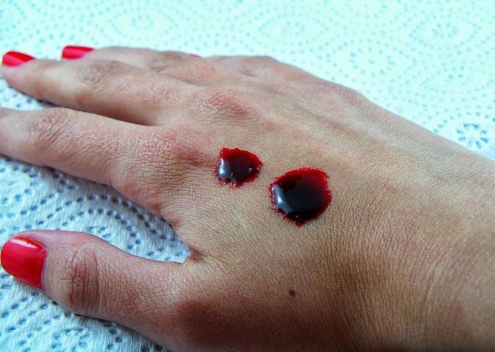 Густая кровь: что делать и чего бояться?