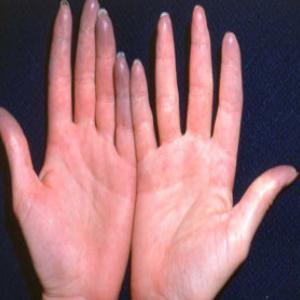 Что делать если я отморозила пальцы