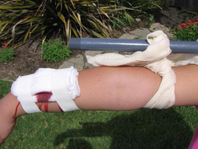 характеристика кровотечений оказание первой помощи