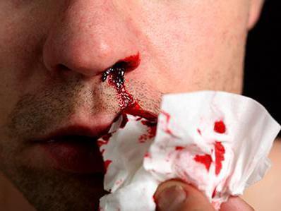 носовое кровотечение оказание первой помощи