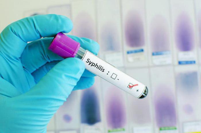 анализ крови на сифилис