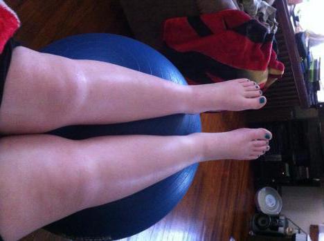 Отеки ног после кесарева: причины и лечение