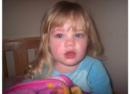 розеолезно петехиальная сыпь является типичным симптомом