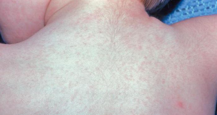розеолезно петехиальная сыпь