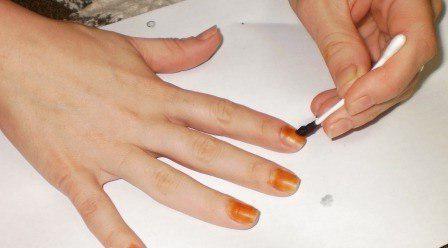 лечение грибка ногтей уксусом и йодом отзывы