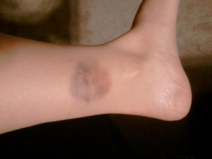 появляются синяки на ногах причина