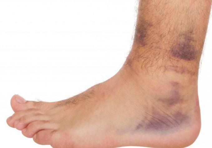 как избавиться от синяков на ногах
