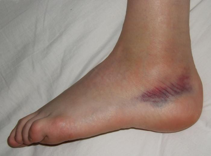 без причины появляются синяки на ногах