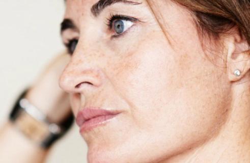 Куриозин отзывы косметологов цена