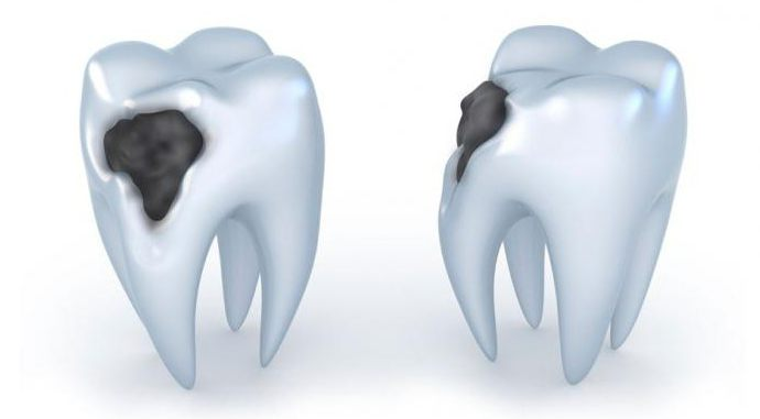 болезни зубной полости