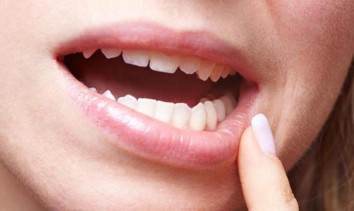 сколько держится отек после удаления кисты зуба