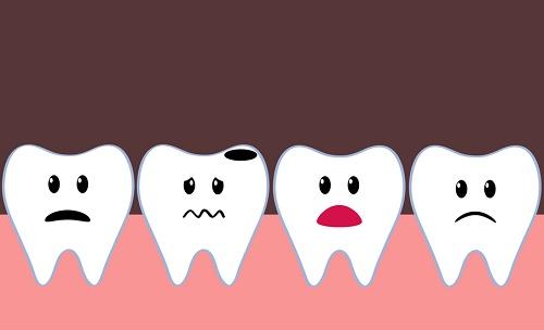 оголенный нерв зуба