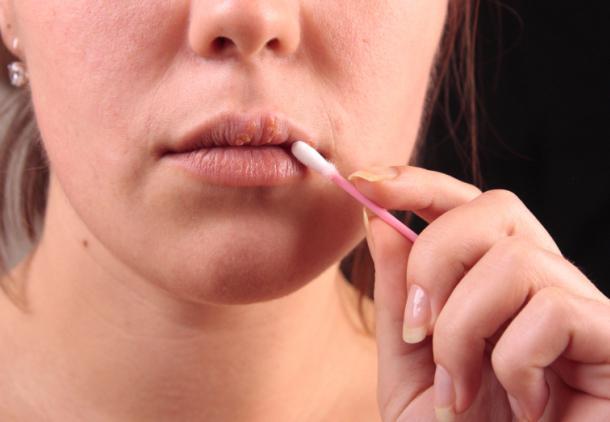 малярия на губах быстрое лечение