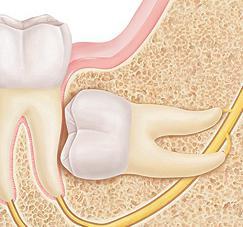 как снять боль при росте зуба мудрости