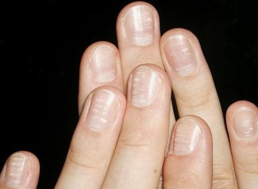 почему ногти ребристые на руках