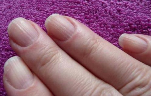 ребристые ногти на руках фото
