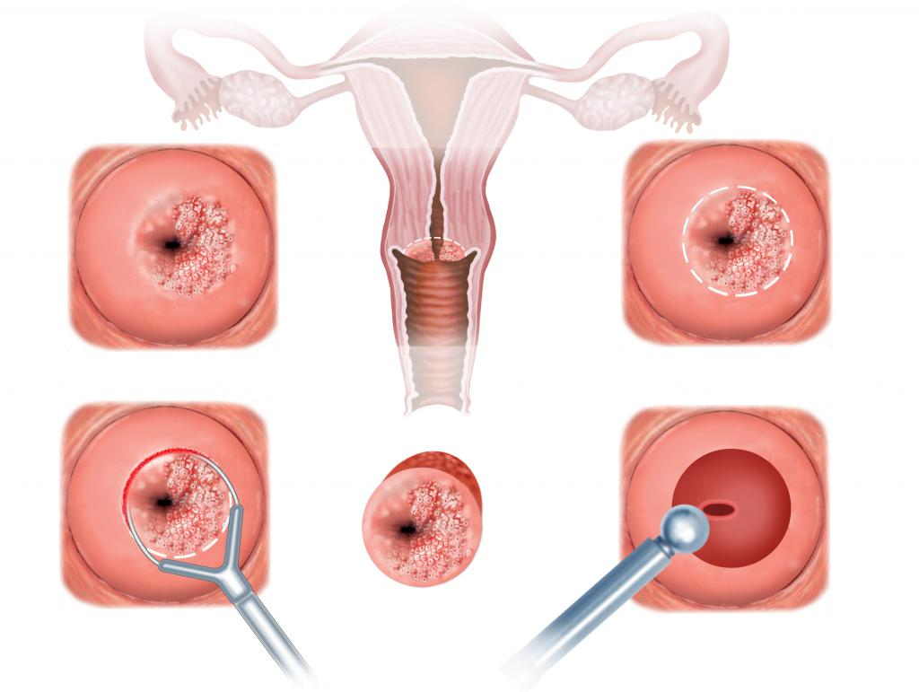 Биопсия шейки матки,можно ли сразу секс