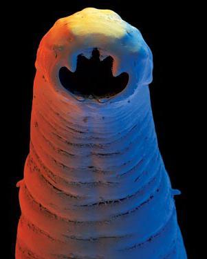 еда паразитов в организме