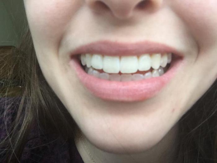 отбеливание зубов это вредно