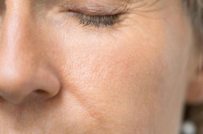 болезнь дырки на коже