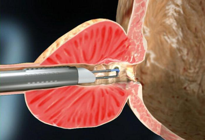 Новый метод лечения простатита